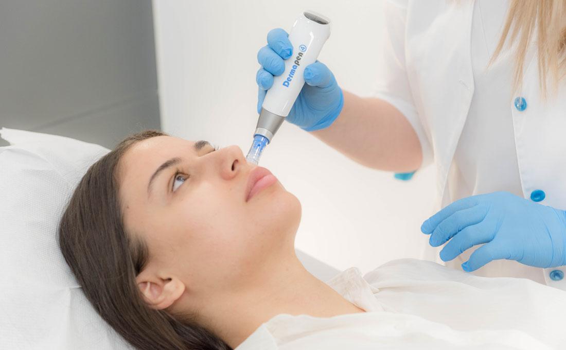 dermapen-4-skinmed-clinic-03